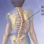 Living with Scoliosis