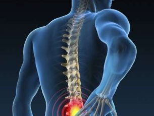 Preventing Low Back Pain