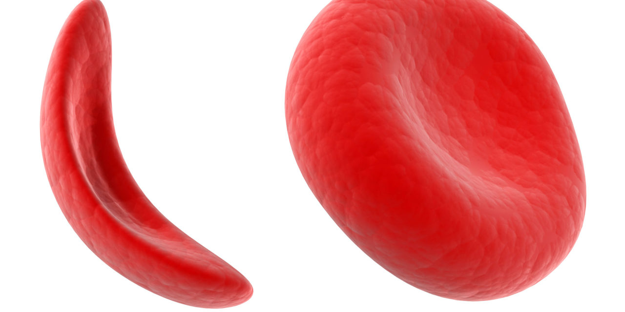 Sickle Cell Breakthrough