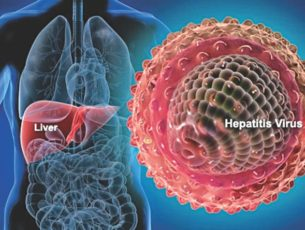 Local Case of Hepatitis A tied to San Diego Outbreak
