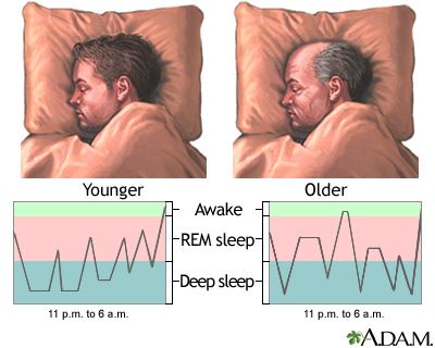 Age Related Sleeplessness